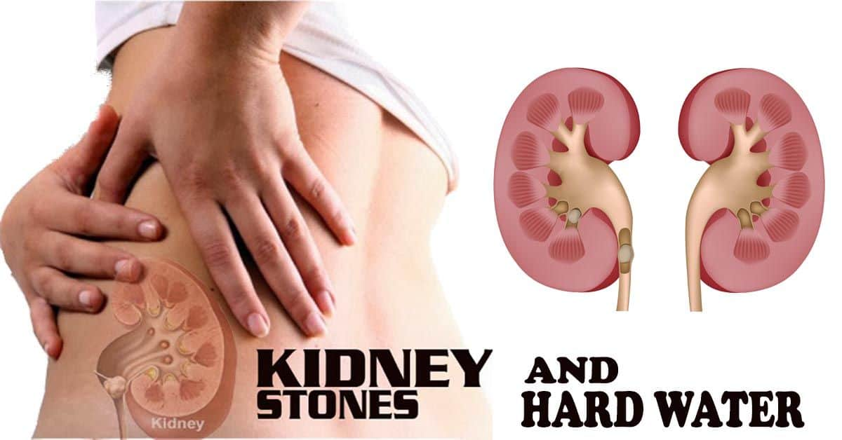 Myth or Reality- Are Kidney Stones Caused by Hard Water?
